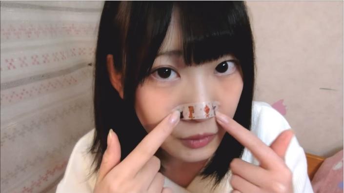 ◆『ねこてん』ってなんで鼻にテープをしてるの?その理由は?